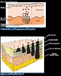 Diagnosi melanoma